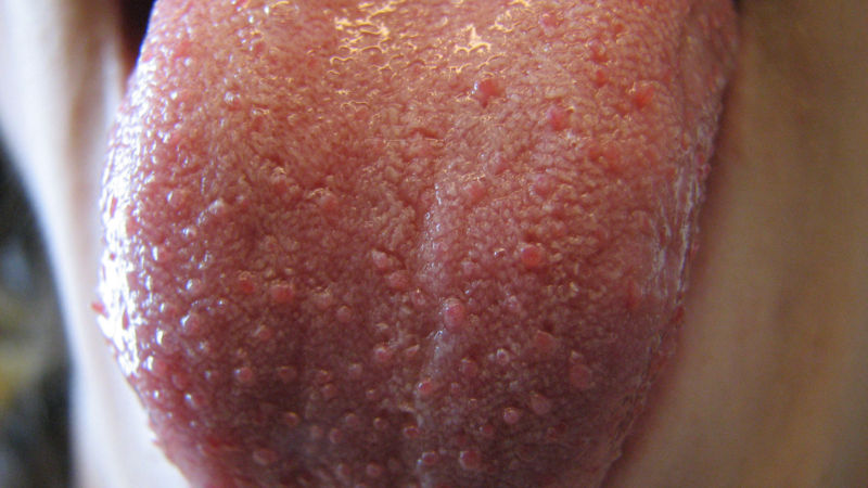 Close-up view of a tongue with visible fungiform papillae (large bumps