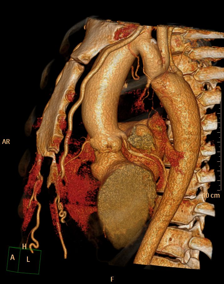 aortic coarctation ct