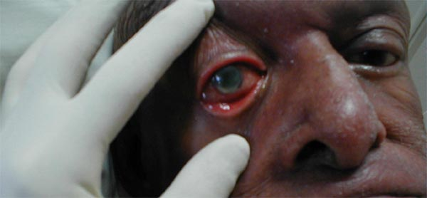 Corneal Ulcer Natural Treatment