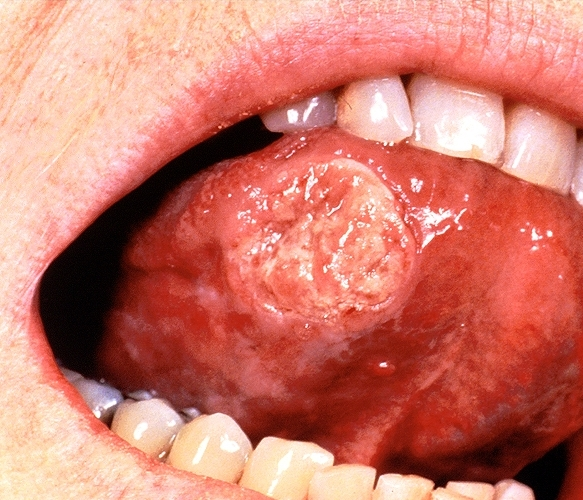 Accept. Squamous cell cancer of the oral tongue consider