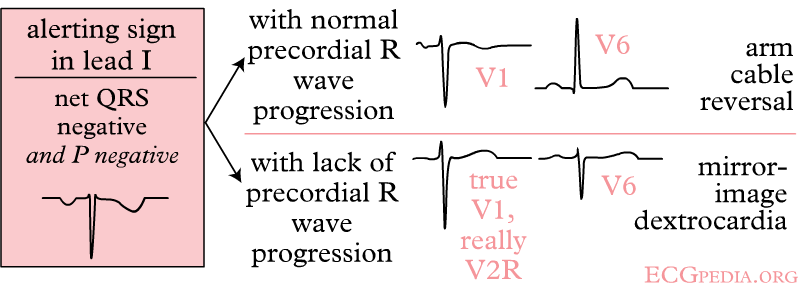 Right and left arm lead reversal can be distinguished from the (much rarer) dextrocardia by looking at the precordial R wave progression.