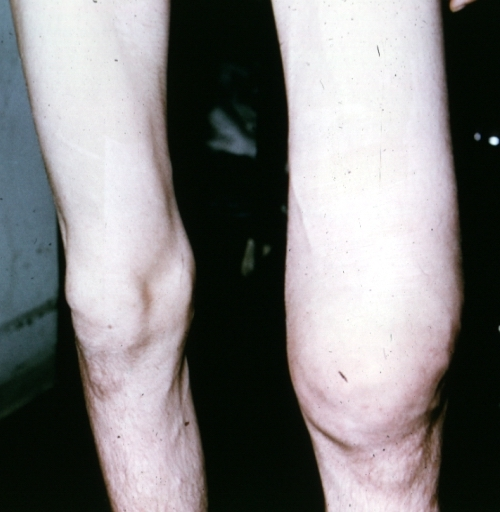 Causes for swelling in left ankle