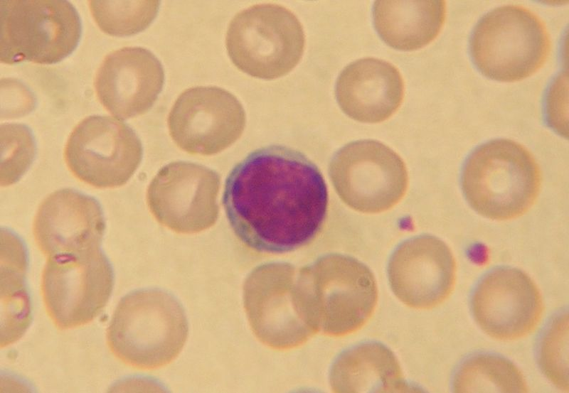 Lymphocyte2.jpg