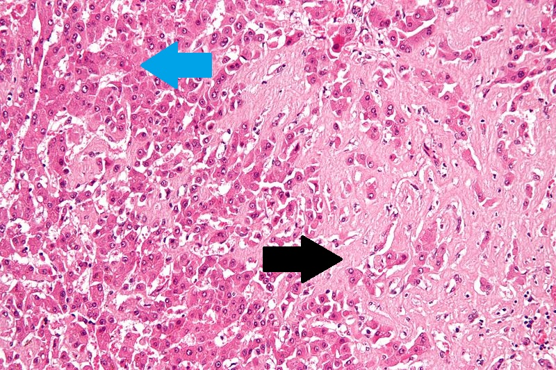 File:Amyloidosis - high mag.jpg
