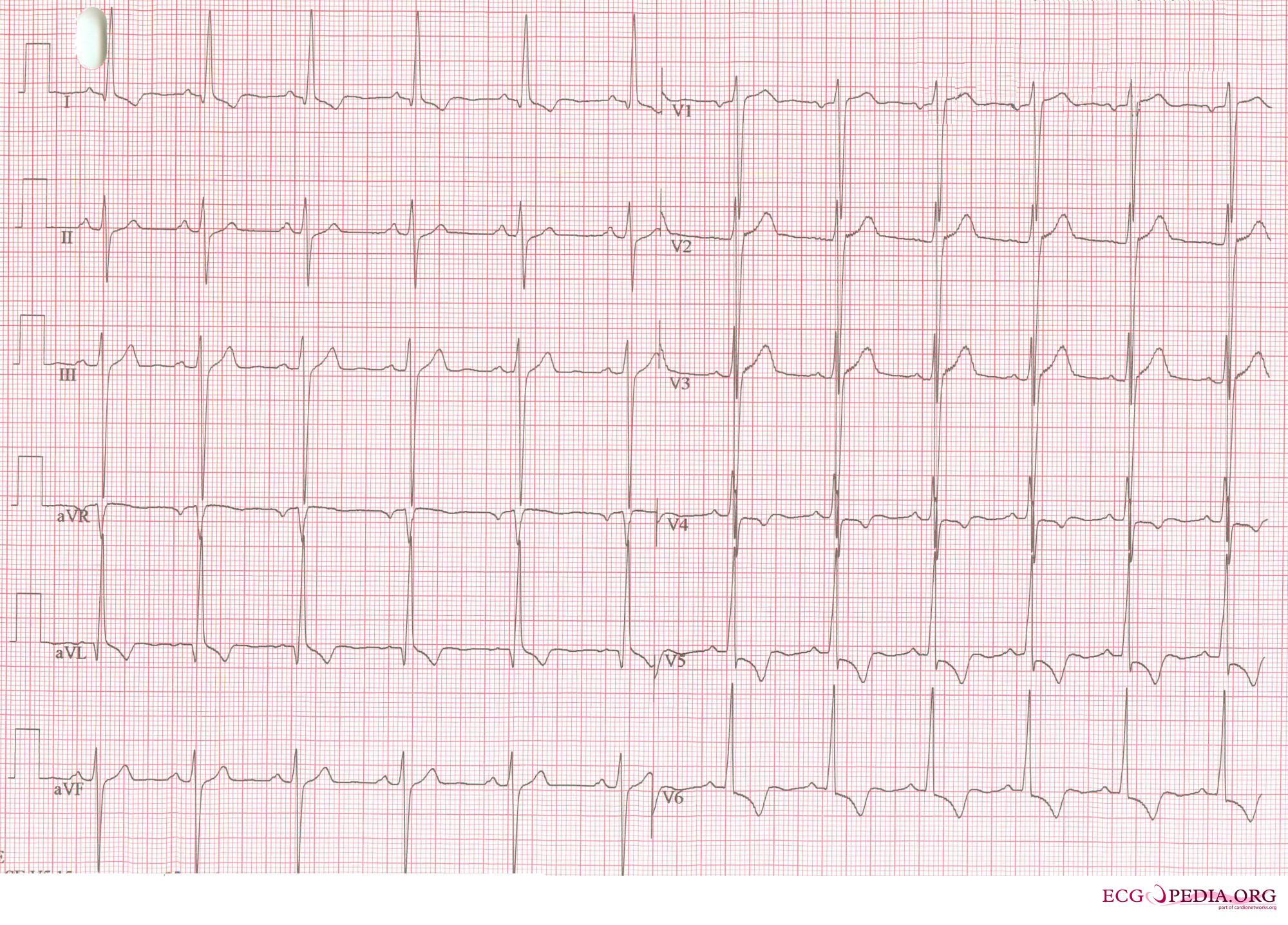 left ventricular hypertrophy electrocardiogram