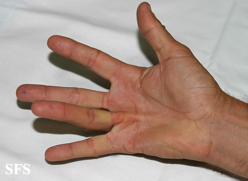 The gallery for --> Dupuytrens Contracture