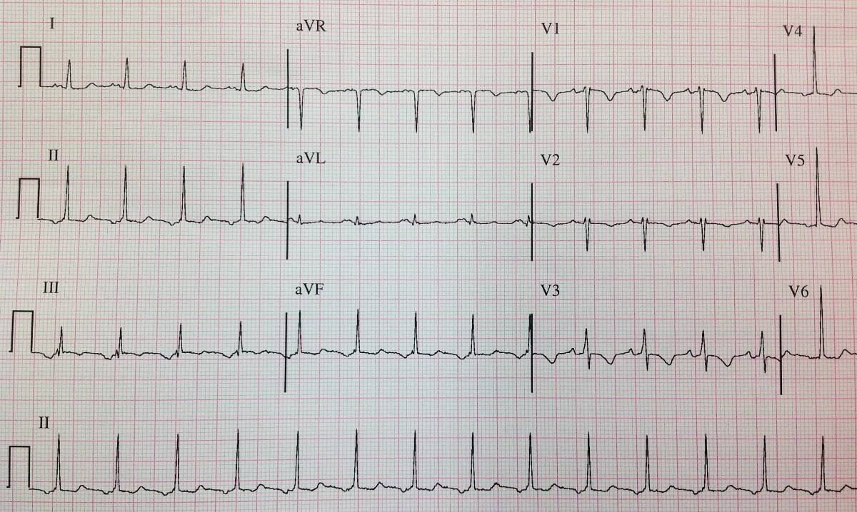 Inverted P waves in inferior leads