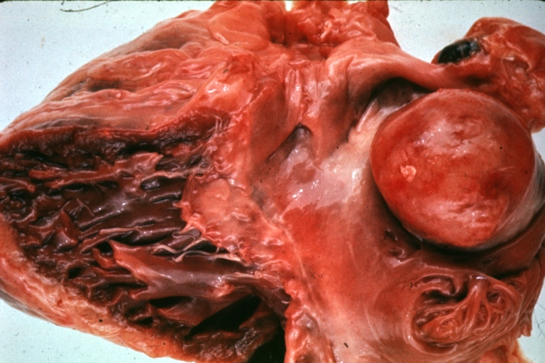 cardiac tumors 25% of cardiac tumors are complicated by tumor embolization- what location of tumor conveys highest risk - age-location - histological origin - noninvasive tissue characterization what 4 factors can help to determine the etiology of a primary cardiac tumor myxomas.