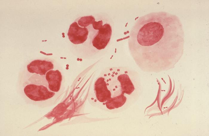 Sexually Transmitted Diseases (Overview) Sexually Transmitted Diseases (Overview) new foto