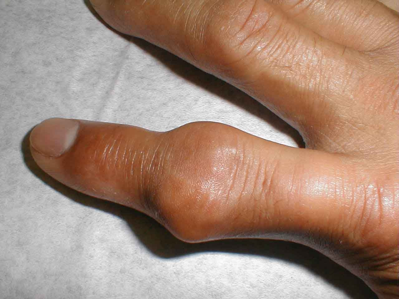 Upper tophaceous gout.jpg