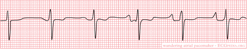 Wandering Atrial Pacemaker 1.png