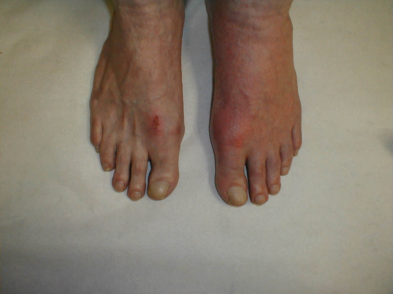 good food for gouty arthritis pain in big toe joint not gout all natural gout jealousy