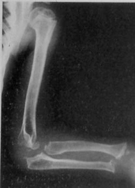 X ray neck
