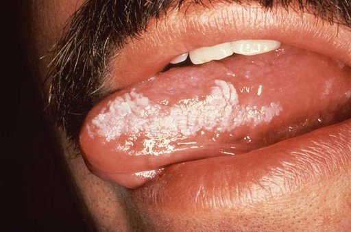 For chewing tobacco hairy tongue you have