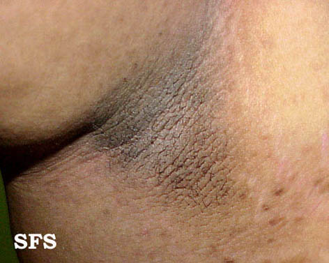Acanthosis Nigricans Treatment Home Remedies For Dogs