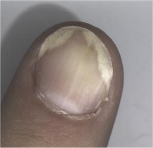fingernail separating from nail bed #10