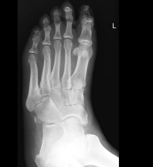 Osteomyelitis x ray - wikidoc