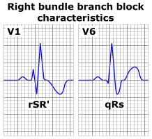 Right bundle branch block ECG characteristics.png