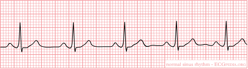 hr diagram line normal sinus rhythm wikidoc  normal sinus rhythm wikidoc