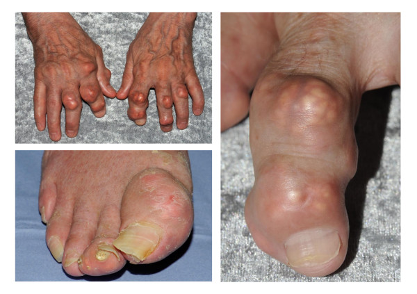 Tophaceous gout-Rt-great-toe.jpg