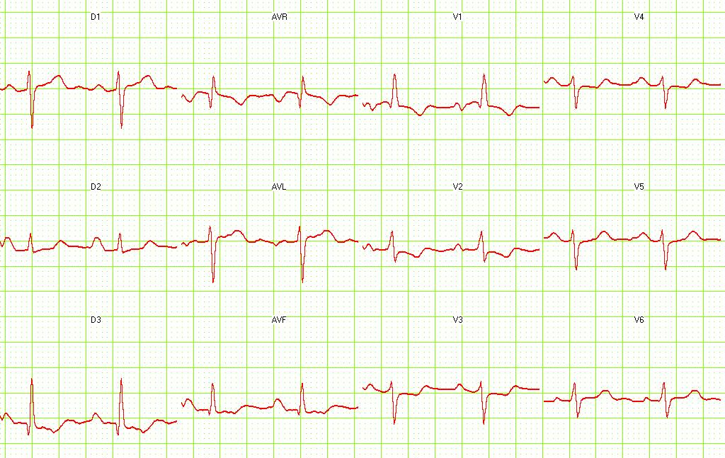 ECG of a patient with pulmonary embolism showing S1-Q3 and signs of right frontal axis deviation.