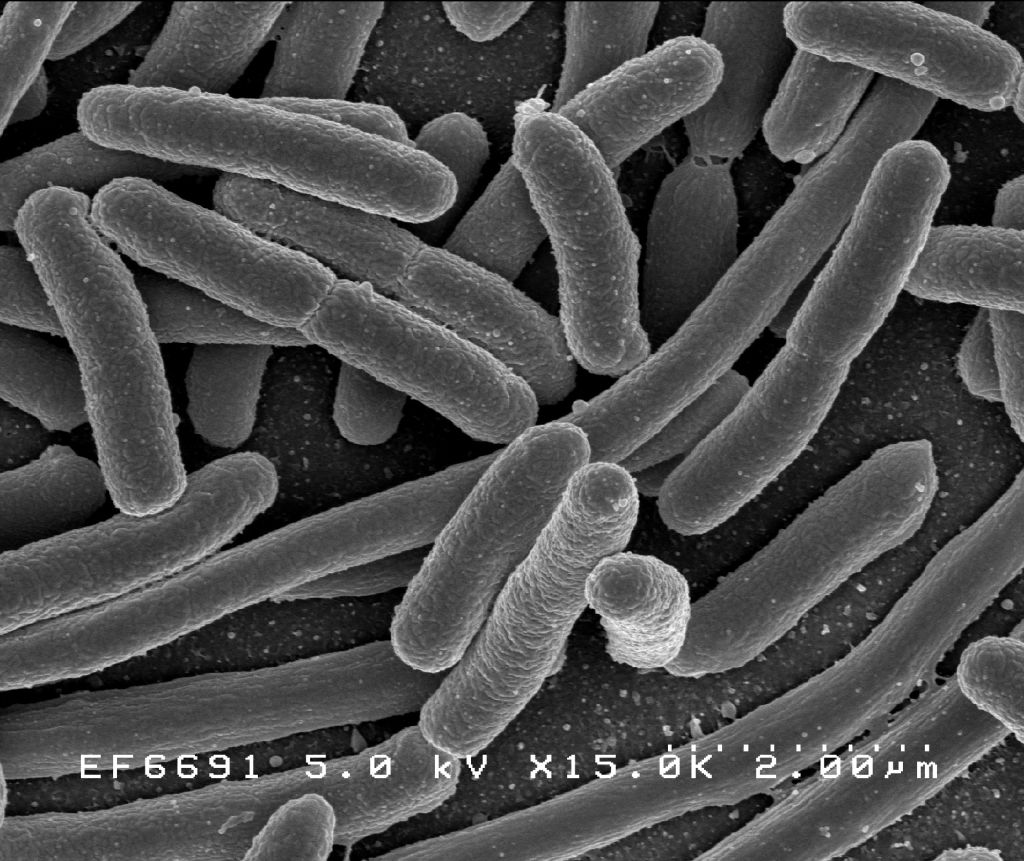 These Escherichia coli cells provide an example of a prokaryotic microorganism