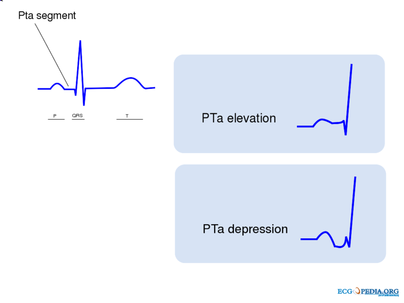 PTa elevation and PTa depression