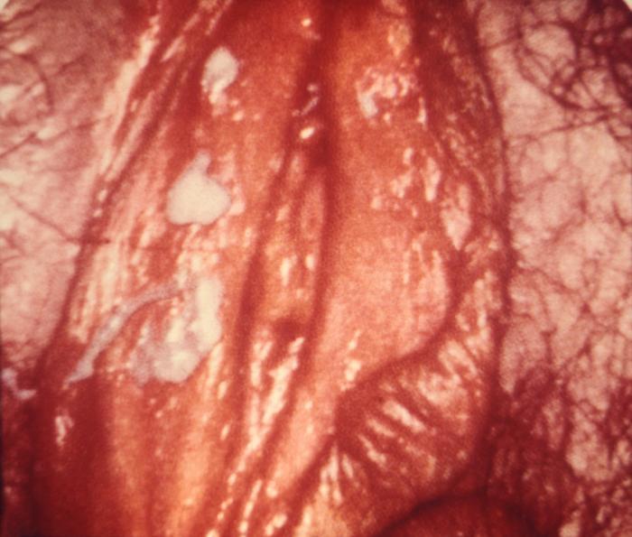 Canker Sores Symptoms, Treatment, Causes - MedicineNet