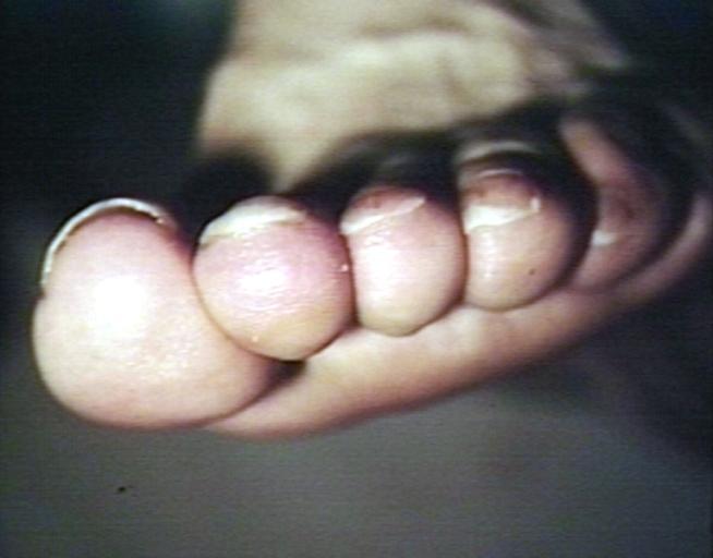 internal psoriasis