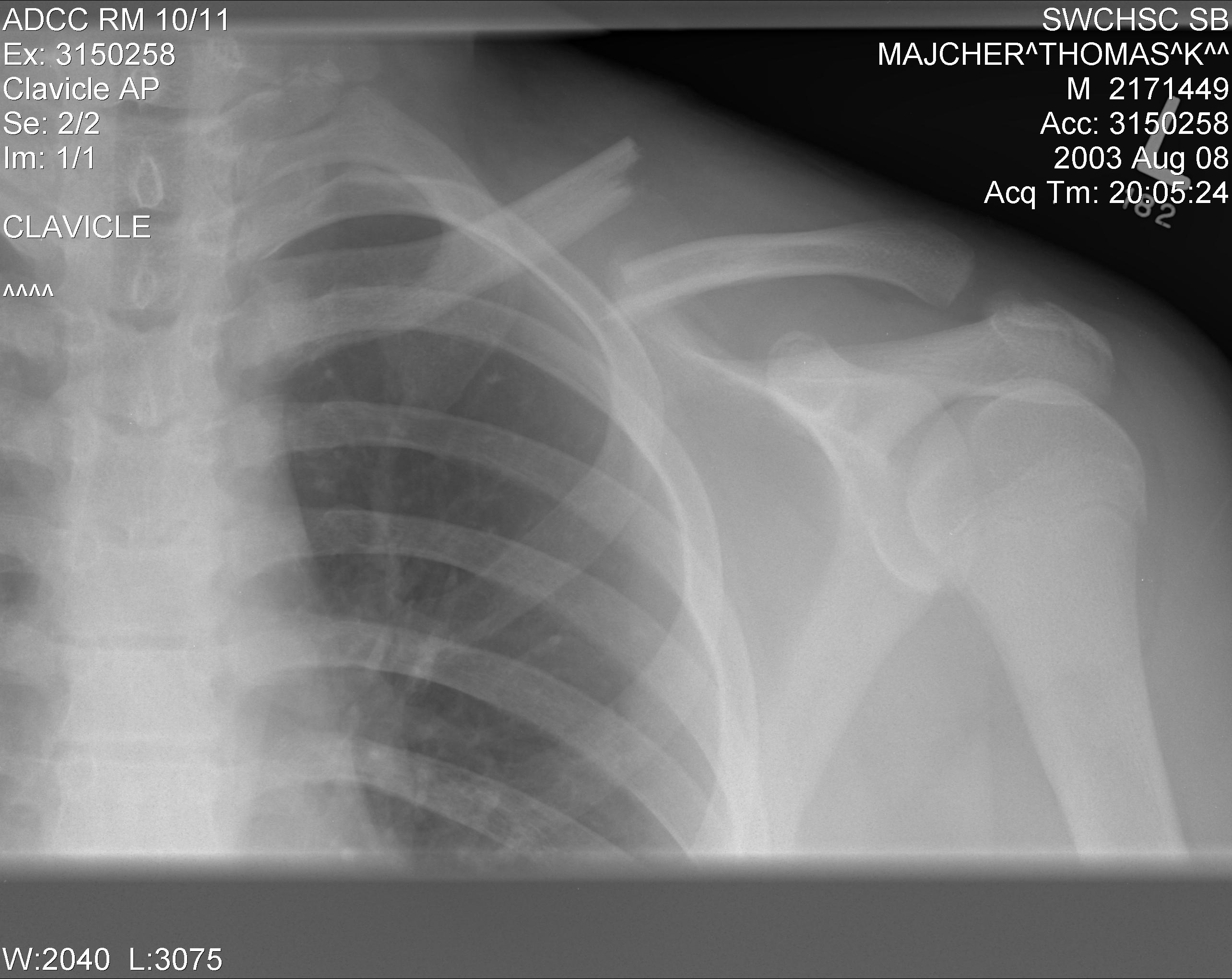 ray of a left clavicle fractureX Ray Broken Collar Bone