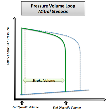 Pressure-volume loop in mitral stenosis. Note that the normal pressure volume loop is in dotted line.