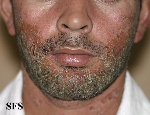 an examination of the skin disease acne vulgaris Background acne vulgaris is a common skin disease that affects patients both physically and mentally purpose to examine the prevalence of reported depression in acne patients methods patient information was obtained from a medical claims database and analyzed using the total resource utilization benchmarks™ process.