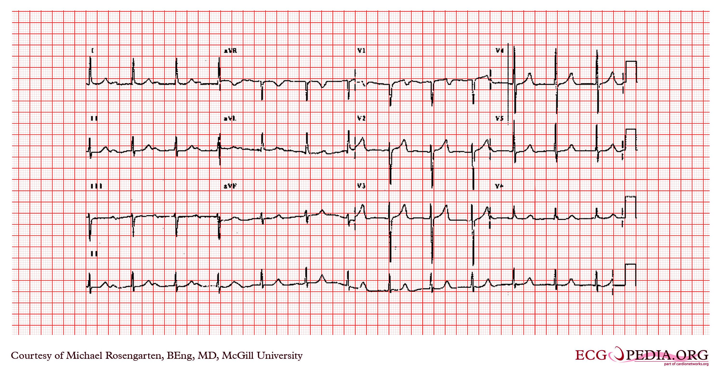 First Degree Heart Block Natural Treatment