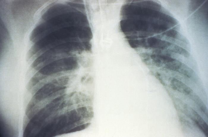 Hantavirus infection chest x ray - wikidoc