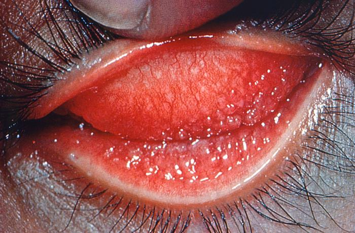 adult inclusion chlamydial conjunctivitis