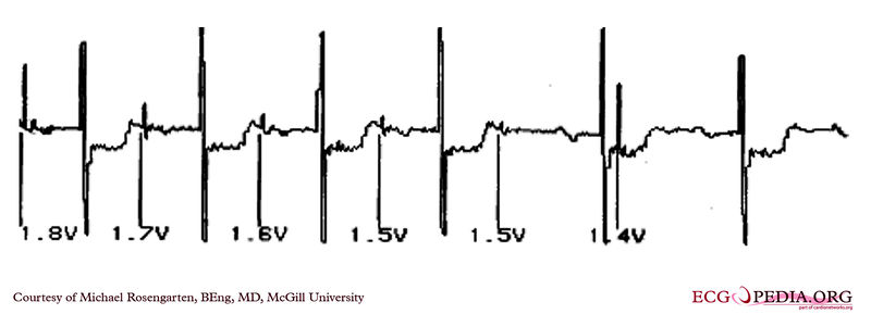 Pacemaker with atrial capture.jpg