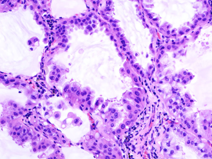 Brochiolo-alveolar carcinoma with mucin production (1).jpg