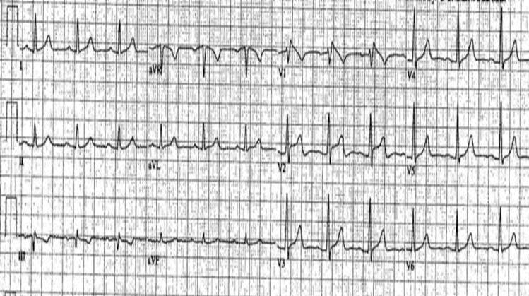 Brugada Syndrome Electrocardiographic Examples Of Type I