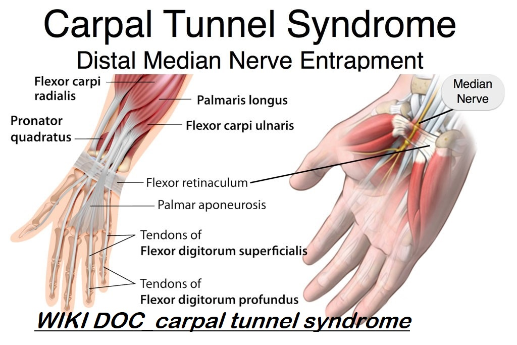 Carpal Tunnel Syndrome Wikidoc