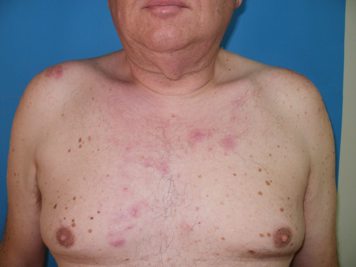 Image Result For Www Cancer Symptoms
