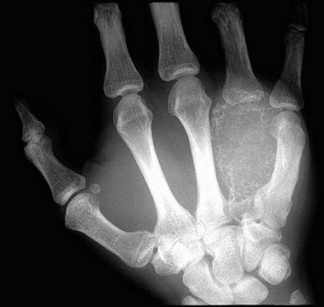 Aneurysmal bone cyst - wikidoc