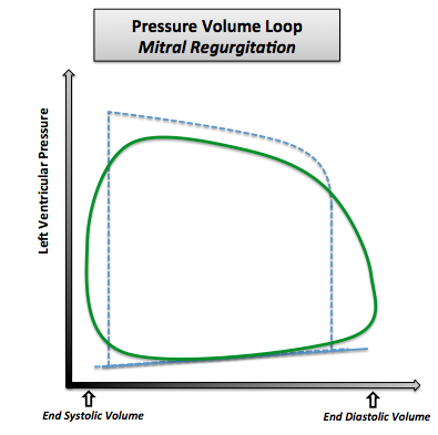 Pressure volume loop in case of mitral regurgitation. Note that the normal pressure volume loop is in dotted line.