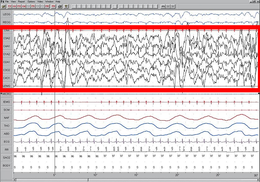 Stage 4 Sleep. EEG highlighted by red box.