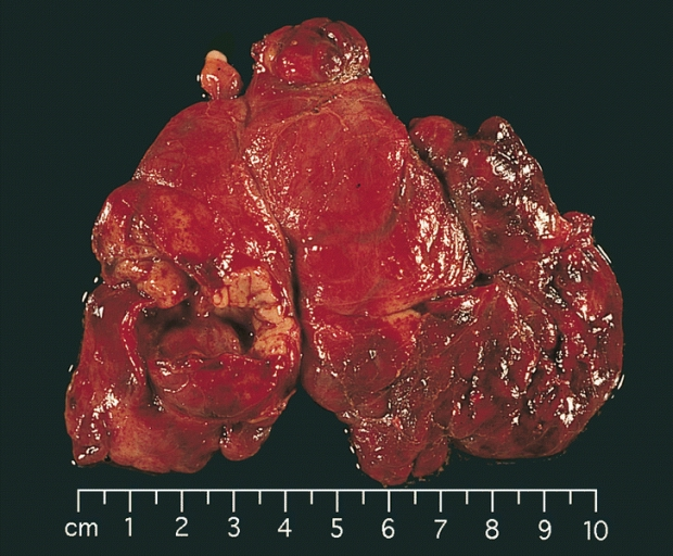 germ cell tumor