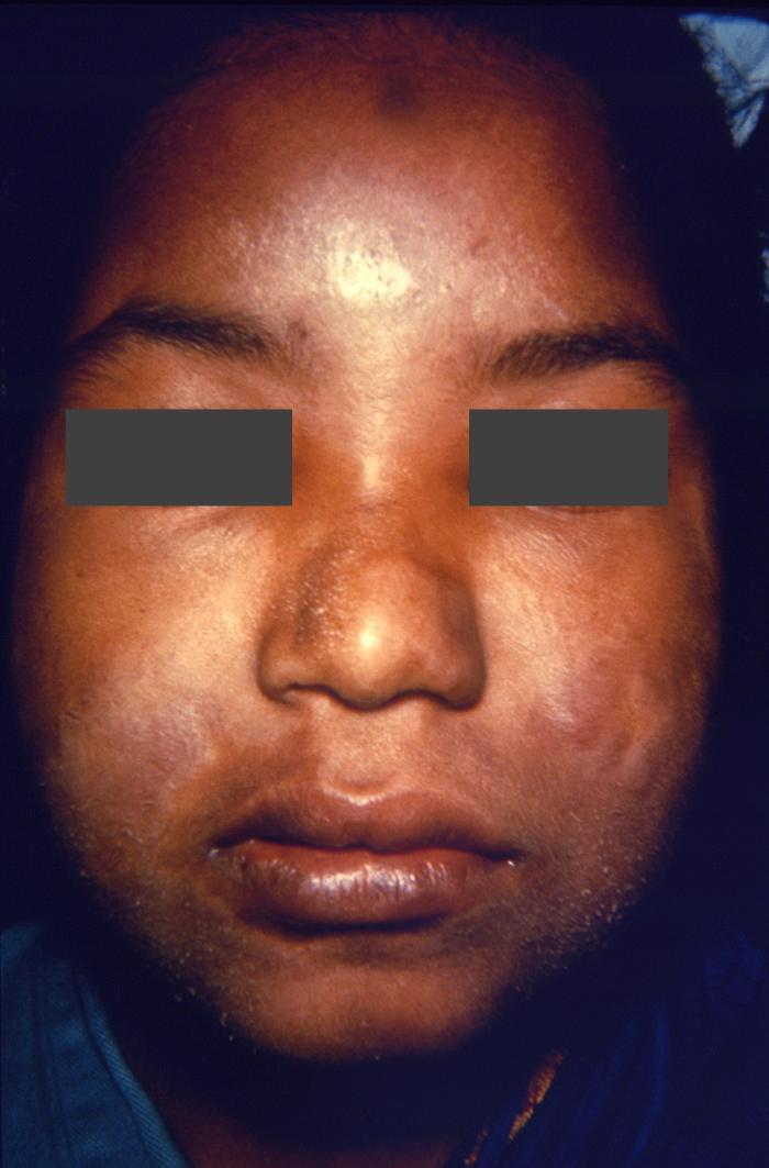 Leprosy Physical Examination
