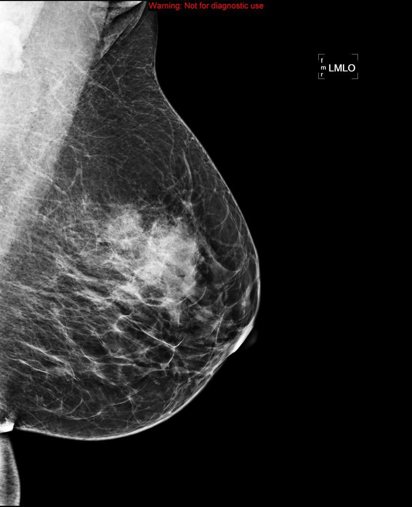 Fibroadenooma