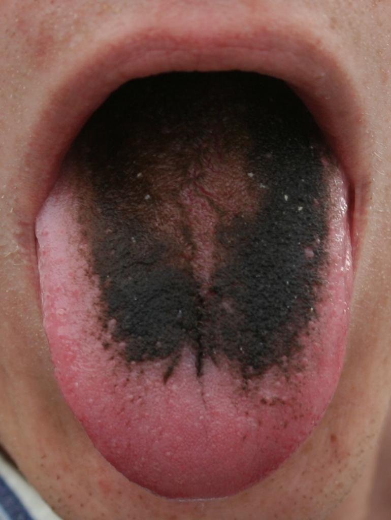 Black hairy tongue - Wikipedia
