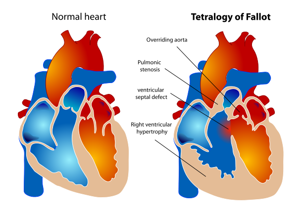 Tetralogy of Fallot svg.png