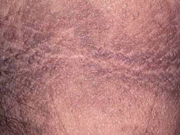Acanthosis nigricans - Mayo Clinic