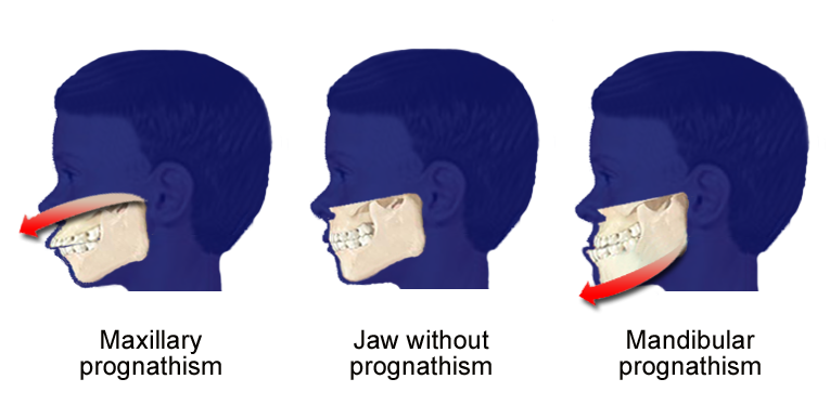 Prognathism - wikidoc